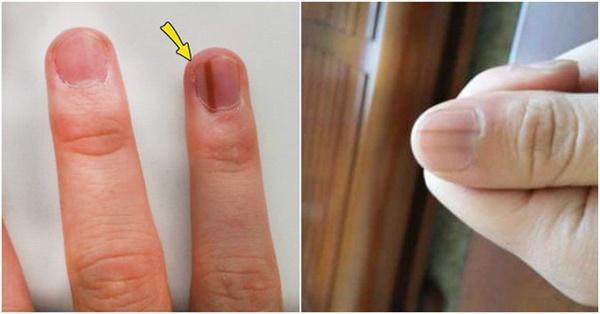 Người có chức năng gan ổn định sẽ không có 4 điểm sau trên đôi tay, cùng xem bạn có điểm nào hay không-2