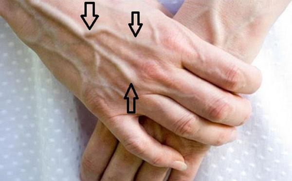 Người có chức năng gan ổn định sẽ không có 4 điểm sau trên đôi tay, cùng xem bạn có điểm nào hay không-3