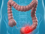 Ung thư lưỡi ngày càng phổ biến, bác sĩ cảnh báo 4 nguyên nhân gây bệnh-4