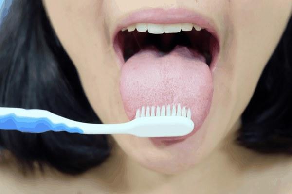 Ung thư lưỡi ngày càng phổ biến, bác sĩ cảnh báo 4 nguyên nhân gây bệnh-3
