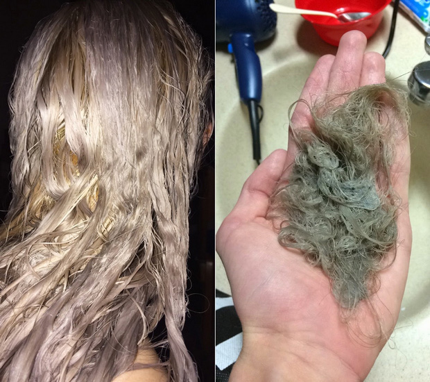 Làm tóc xinh đón Tết, cô gái hết hồn khi tẩy tóc bị rụng nguyên cả mảng đến mức hói đầu-4