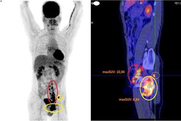 Đi khám vì đau háng, phát hiện tế bào ung thư chạy khắp người-2