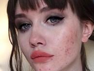 """Nếu """"vùng kín"""" mắc trọng bệnh thường sẽ để lộ các biểu hiện rõ mồn một trên khuôn mặt, tiếc là ai cũng bỏ qua"""