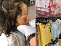 Bé gái bị mù tạm thời một bên mắt vì thứ siêu thị nào cũng có, cha mẹ đưa con đi mua sắm ngày Tết cần lưu ý