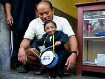 Chàng trai lùn nhất thế giới qua đời ở tuổi 27, đã sống một cuộc đời đáng ngưỡng mộ