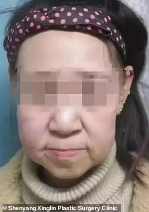 Cô gái 15 tuổi nhưng sở hữu gương mặt như cụ bà nay đã có diện mạo mới khiến ai cũng trầm trồ-1