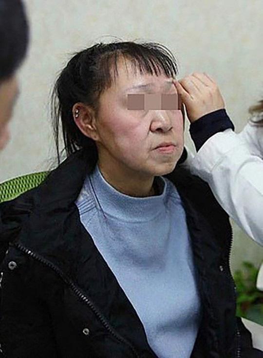 Cô gái 15 tuổi nhưng sở hữu gương mặt như cụ bà nay đã có diện mạo mới khiến ai cũng trầm trồ-2