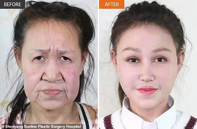 Cô gái 15 tuổi nhưng sở hữu gương mặt như cụ bà nay đã có diện mạo mới khiến ai cũng trầm trồ-4
