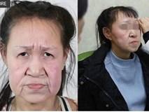 Cô gái 15 tuổi nhưng sở hữu gương mặt như cụ bà nay đã có diện mạo mới khiến ai cũng trầm trồ