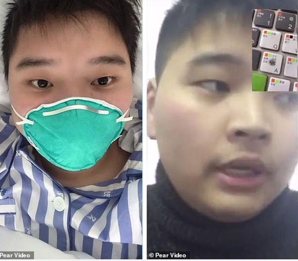 Bệnh nhân đầu tiên mắc virus corona ở Vũ Hán hồi phục, chia sẻ cảm nhận về những ngày nằm trong phòng điều trị tích cực-1
