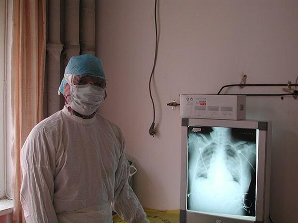 Bác sĩ nổi tiếng Trung Quốc tiết lộ lí do bản thân nhiễm virus Vũ Hán dù đã vô cùng cẩn trọng và đeo khẩu trang N95-3