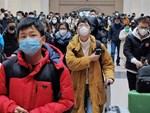 Bác sĩ BV Việt Đức đưa ra 10 lưu ý cho người dân trước tình hình bệnh dịch virus Corona lan rộng-5