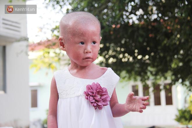 Cuộc sống hiện tại của em bé người đầy vẩy ngứa như da trăn, bị bố mẹ bỏ rơi trong bệnh viện-3