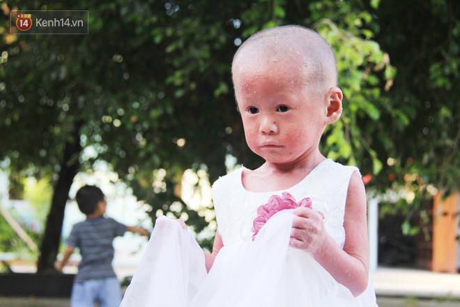 Cuộc sống hiện tại của em bé người đầy vẩy ngứa như da trăn, bị bố mẹ bỏ rơi trong bệnh viện-6