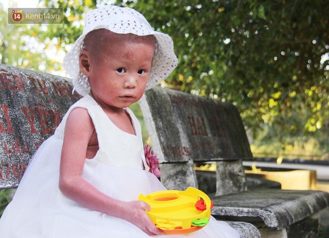 Cuộc sống hiện tại của em bé người đầy vẩy ngứa như da trăn, bị bố mẹ bỏ rơi trong bệnh viện-9