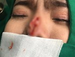 Đi nâng mũi cho thon gọn, nữ sinh viên bỗng nôn ra máu và đau bụng dữ dội đến chết, bác sĩ phẫu thuật đưa ra lý do gây choáng-2