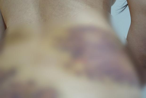 Vụ nghi bạo hành, ép quan hệ tình dục ở Tây Ninh: Nạn nhân yêu cầu xử lý hình sự-1