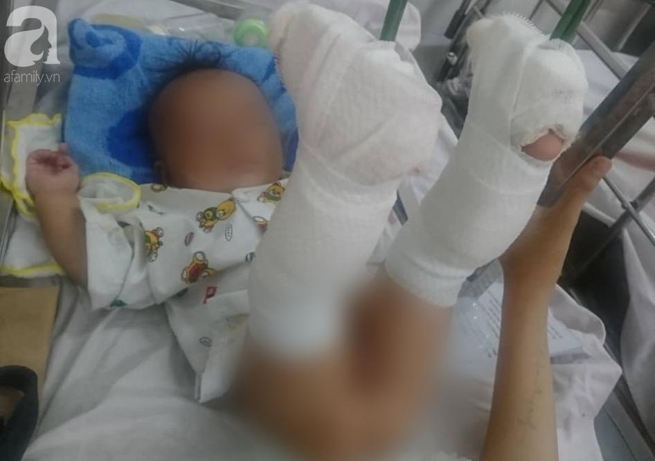 Thực hư chuyện cha ruột bạo hành dã man con trai 4 tháng tuổi ở TP.HCM khi đang ngáo đá?-4
