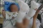 Làm giấy khai sinh cho bé 4 tháng bị bố đánh gãy chân: Mang họ mẹ, tên cha để trống-3