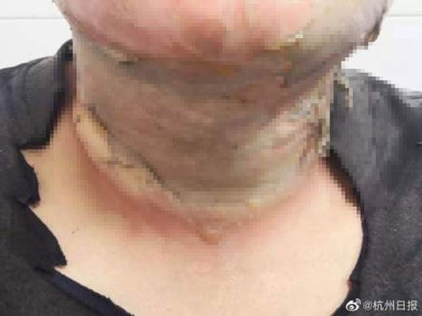 Cảnh báo từ trường hợp dùng cồn sát trùng tiêu diệt virus corona, người đàn ông bất ngờ bị lửa bén, nhập viện trong tình trạng bỏng nặng-1