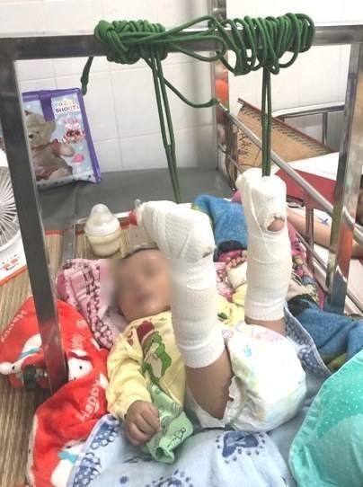 Làm giấy khai sinh cho bé 4 tháng bị bố đánh gãy chân: Mang họ mẹ, tên cha để trống-1