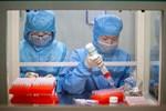 Hà Nội phát hiện thêm 1 ca nghi ngờ nhiễm virus Corona tại quận Nam Từ Liêm-2