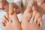 Bác sĩ BV Việt Đức khuyến cáo: Dễ bị hỏng, phải cắt thận vì bỏ qua 5 dấu hiệu cảnh báo sớm-2