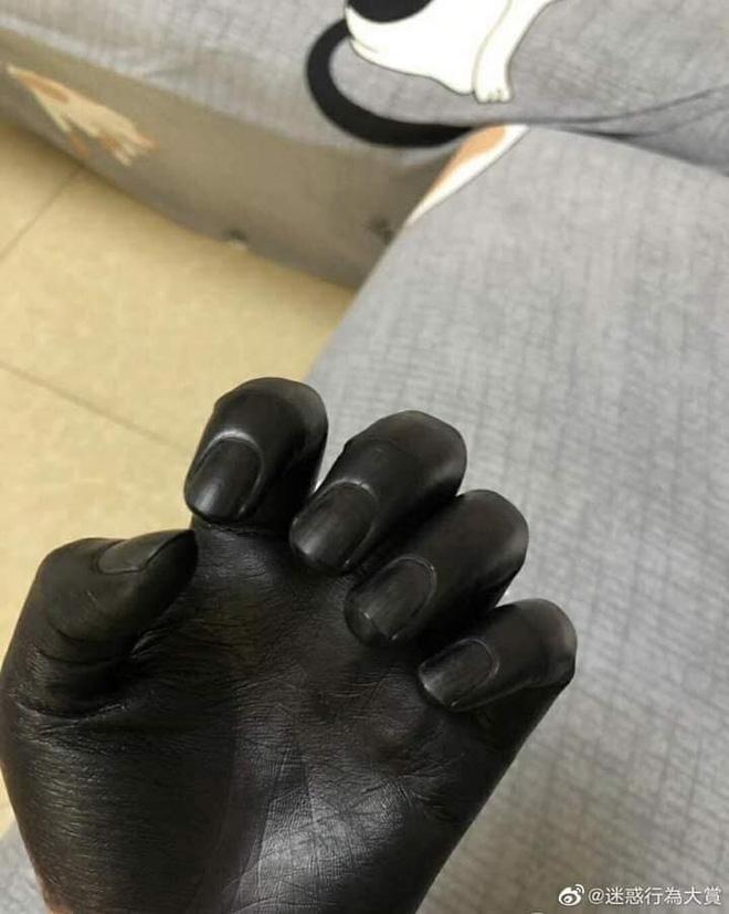 Đôi tay đen phát sợ của người đàn ông, lý do đằng sau khiến ai cũng ngao ngán-2
