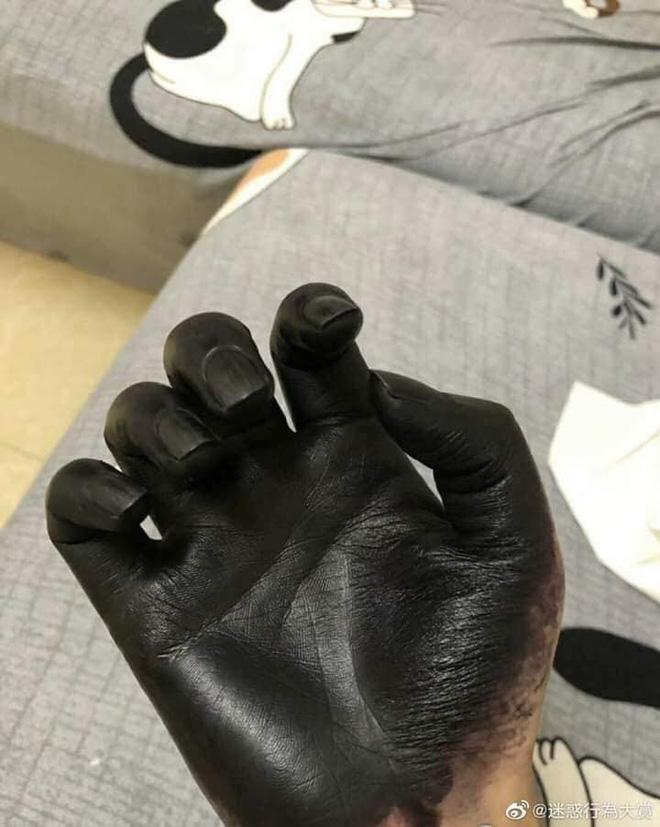 Đôi tay đen phát sợ của người đàn ông, lý do đằng sau khiến ai cũng ngao ngán-3
