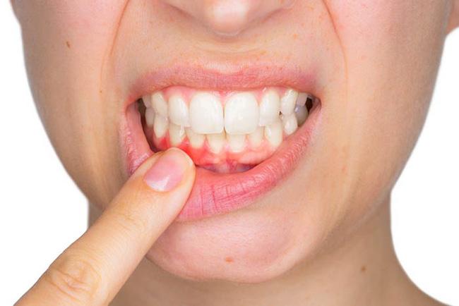 Cảnh báo: Những người bị chảy máu nướu răng có nguy cơ đột quỵ não cao gấp 2 lần người bình thường-1
