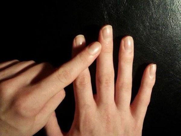 Nếu ngón tay xuất hiện những dấu hiệu này, cảnh giác ngay vì có thể bạn mắc ung thư phổi-4