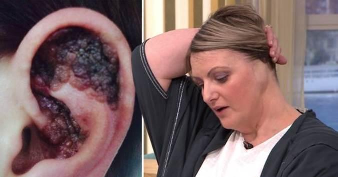 Nằm giường tắm nắng, một phụ nữ phải cắt cụt tai do ung thư da-2