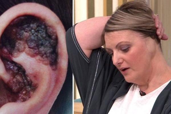 Tắm nắng một phụ nữ phải cắt cụt tai do ung thư da