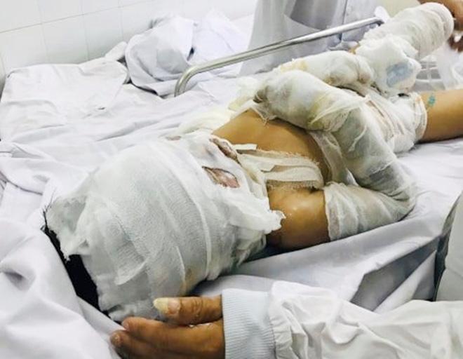 Vụ bé trai 6 tuổi bị dì ruột thiêu sống ở Vũng Tàu: Được ủng hộ hơn 200 triệu, bố bật khóc mong chữa khỏi bệnh cho con-6