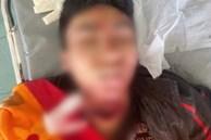 Thêm 1 vụ nạn nhân bị sát hại, cắt cổ dã man nghi do đánh bạc gian lận
