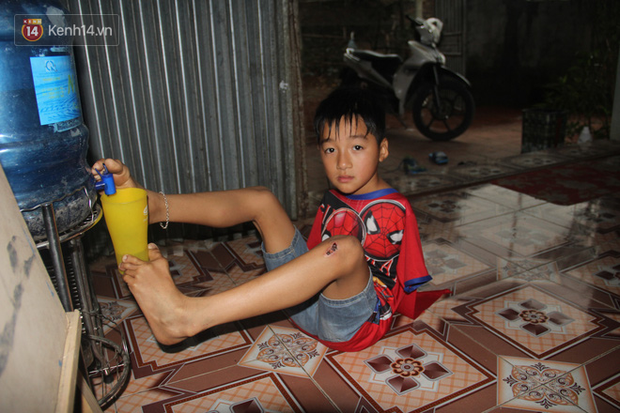 """Cậu bé không tay vẽ cuộc đời bằng đôi chân kỳ diệu và câu hỏi thắt lòng: Bao giờ tay con sẽ mọc hả mẹ?""""-14"""