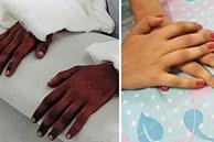 Cô gái trẻ được ghép bàn tay của một nam thanh niên da đen, 2 năm sau bác sĩ kinh ngạc khi thấy nó 'chuyển màu'