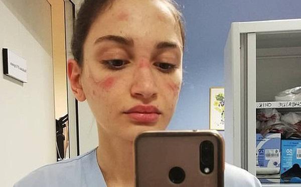 Thảm cảnh với y bác sĩ Vũ Hán tái diễn ở Italy: Nhân viên y tế tím mặt vì đeo khẩu trang, ngủ gục trên bàn vì kiệt sức-1