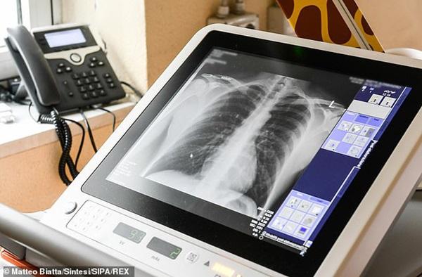 Thảm cảnh với y bác sĩ Vũ Hán tái diễn ở Italy: Nhân viên y tế tím mặt vì đeo khẩu trang, ngủ gục trên bàn vì kiệt sức-5