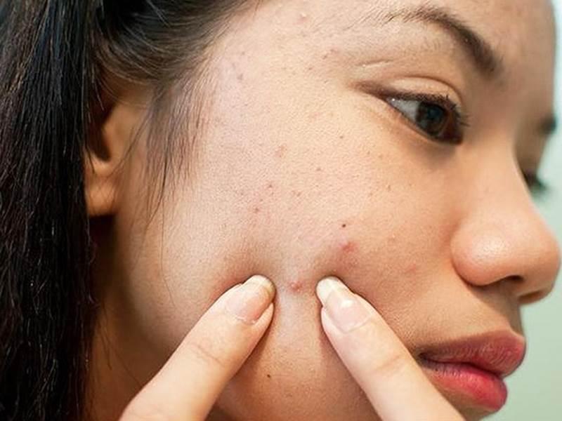 Tự tin phơi mặt dưới ánh mặt trời, H'Hen Niê để lộ mụn và da sần sùi dù makeup kĩ-12
