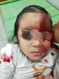 Bị chó cắn rách mặt, bệnh nhi 6 tuổi nhập viện trong tình trạng lo sợ, hoảng loạn