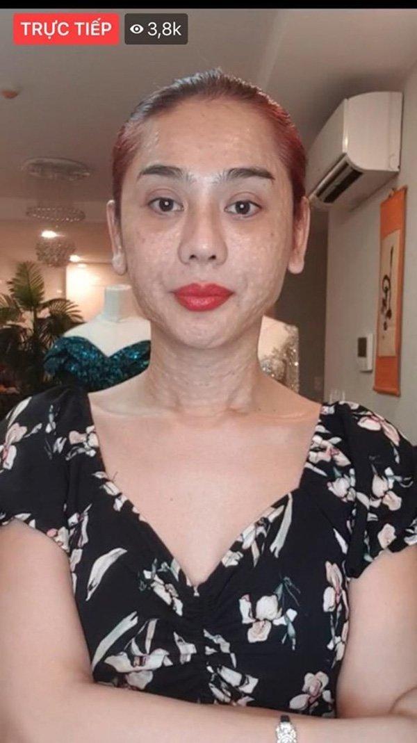 Fans tá hoả với đôi mắt vừa sưng vừa xếch: Lâm Khánh Chi thừa nhận vừa mới dao kéo-3