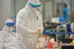 Bác sĩ bệnh truyền nhiễm không khai báo khi đi du lịch về, trở thành ca bệnh siêu lây nhiễm, ảnh hưởng 1.200 người và đối mặt với án tù-4