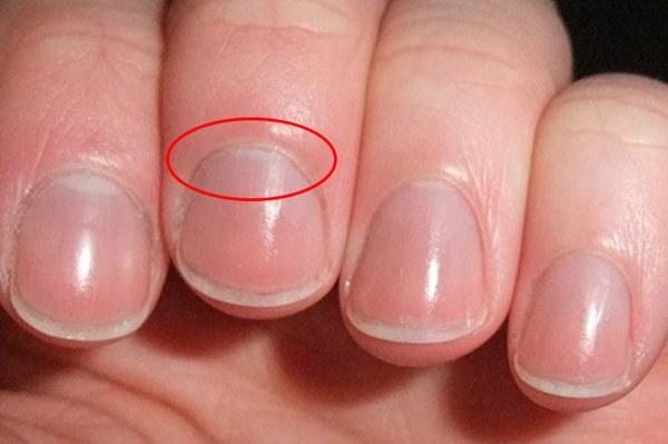 4 dấu hiệu lạ trên tay có thể là dấu hiệu cảnh báo thận của bạn có thể đang suy yếu, cần theo dõi thêm để bảo vệ sức khỏe-1