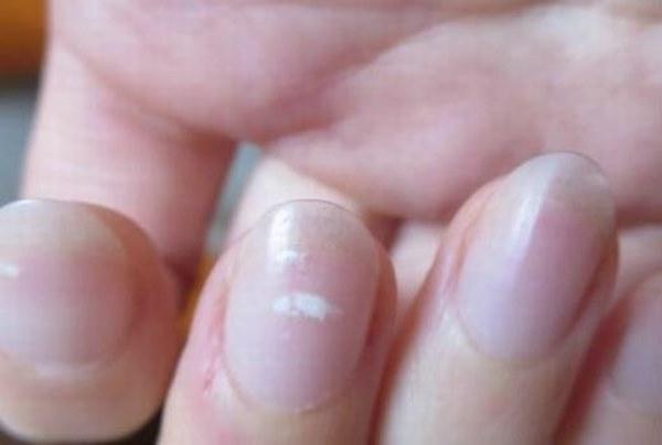 4 dấu hiệu lạ trên tay có thể là dấu hiệu cảnh báo thận của bạn có thể đang suy yếu, cần theo dõi thêm để bảo vệ sức khỏe-2