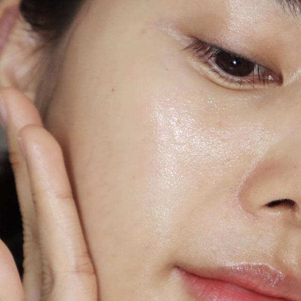 5 bước giúp bạn xóa sạch đến từng đốm mụn, lại dưỡng da căng sáng long lanh luôn thể-3