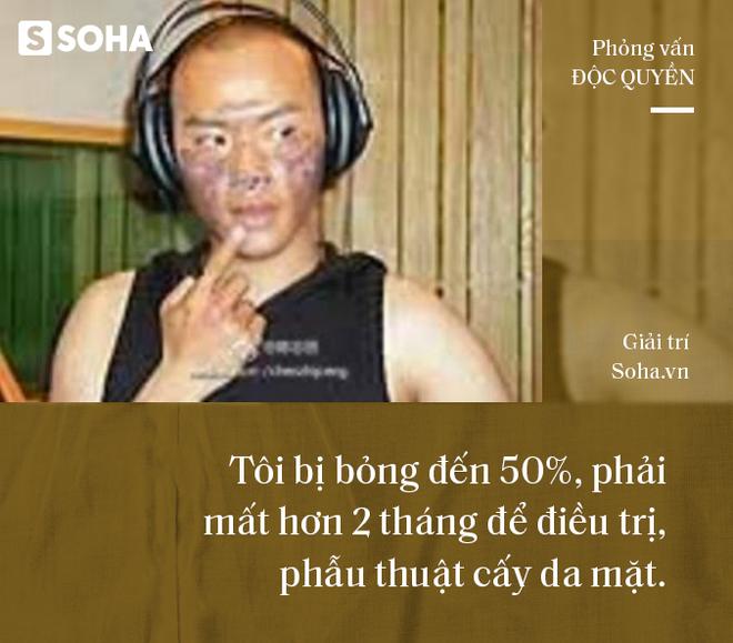 Nhĩ Thái phim Hoàn Châu Cách Cách trải lòng về cú sốc khiến mặt bị bỏng 50%-7