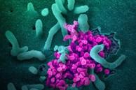 Tin vui: Virus corona đột biến chậm hơn cúm, vắc-xin Covid-19 sẽ có hiệu quả kéo dài