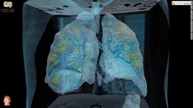 Đoạn video cho thấy virus corona có thể làm gì với phổi của bệnh nhân: Tất cả mọi người, xin hãy chống dịch thật nghiêm túc-2