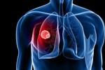 Nguyên nhân gây bệnh ung thư phổi